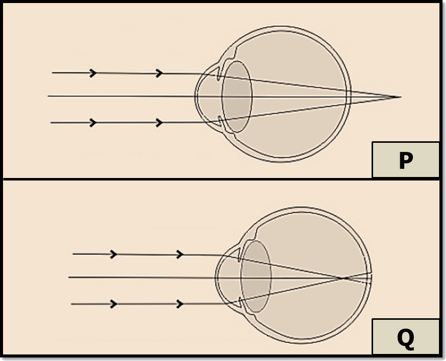 Image showing two types of defect of vision.