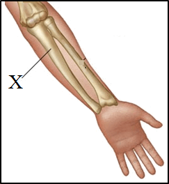 This diagram shows the arm and identify X
