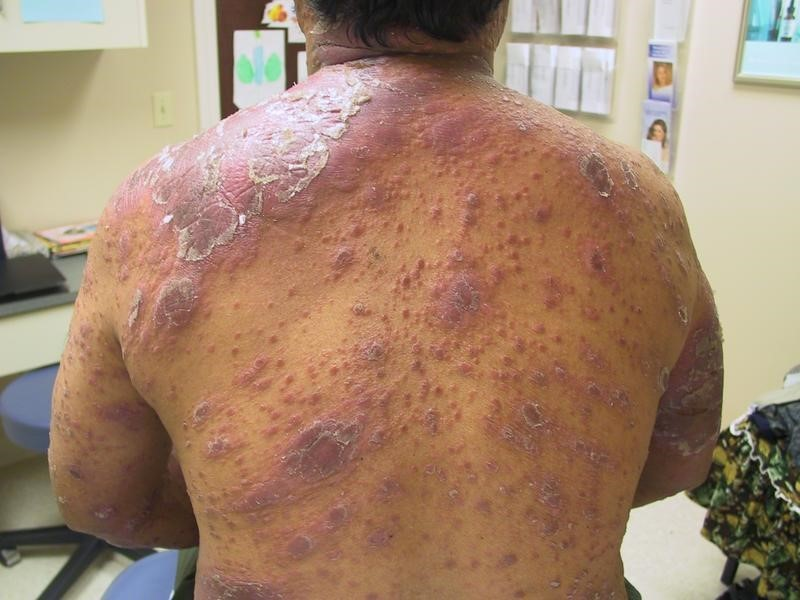 leprosy affected Person