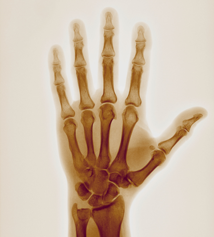 Image of X-ray