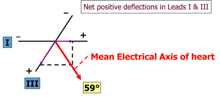 Calculation of the Mean Electrical Axis Image