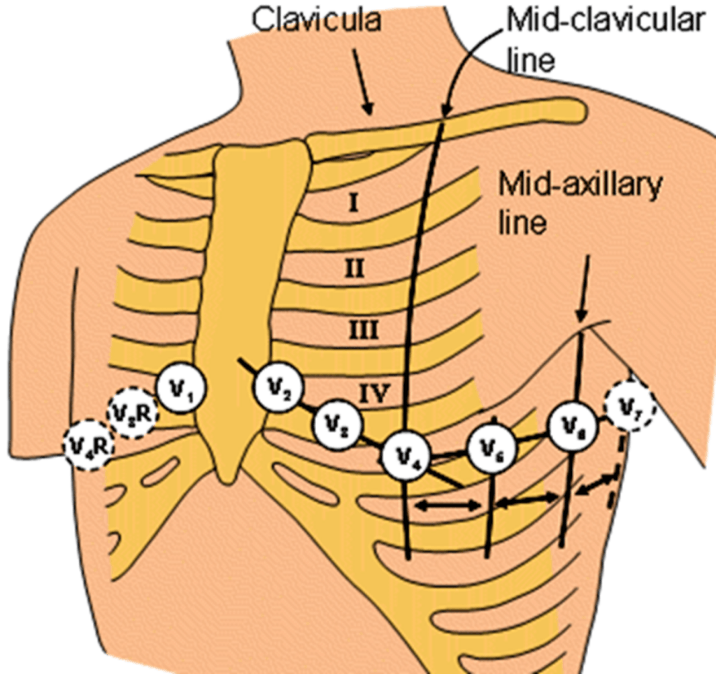 Image of Clavicula, Mid Clavicular Line And Mid Axillary Line