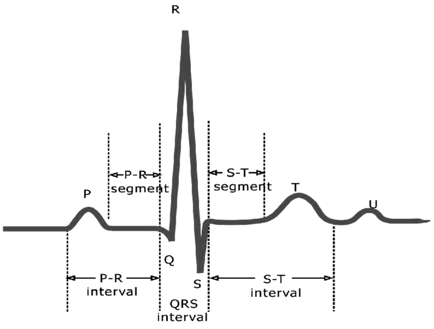 ECG–Waves, Intervals and Segments Image