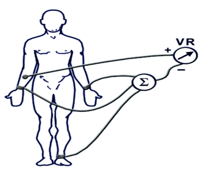 Image of Connected Augmented Limb Leads