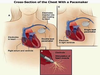 Image of Cross-Section of The Chest With a Pacemaker