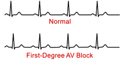 Image of First Degree Heart Block