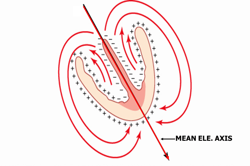 Image of Mean Electrical Axis