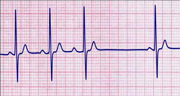 Image of Second Degree Heart Block Type-I