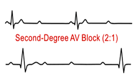 Image of Second Degree Heart Block Type - II