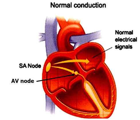 Image of Normal Conduction