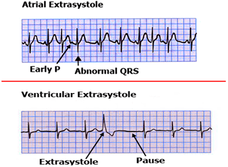 Image of Atrial Extrasystole And Ventricular Extrasystole