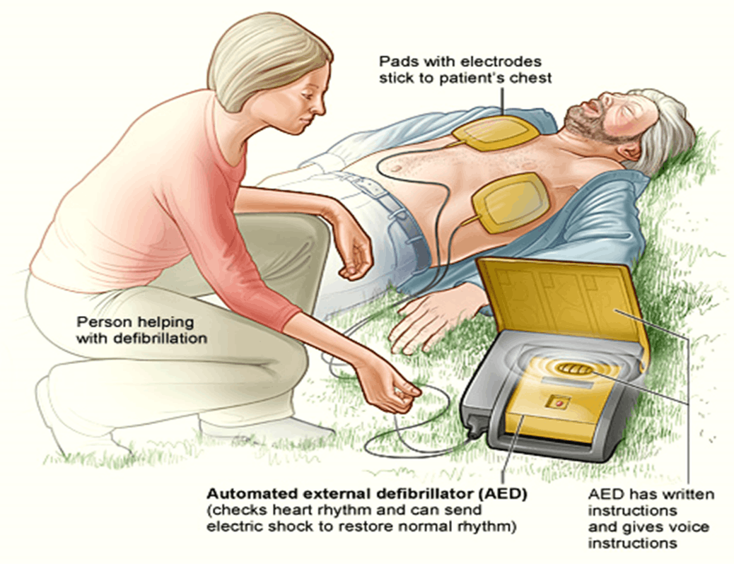 Image of Automated External Defibrillator (AED)