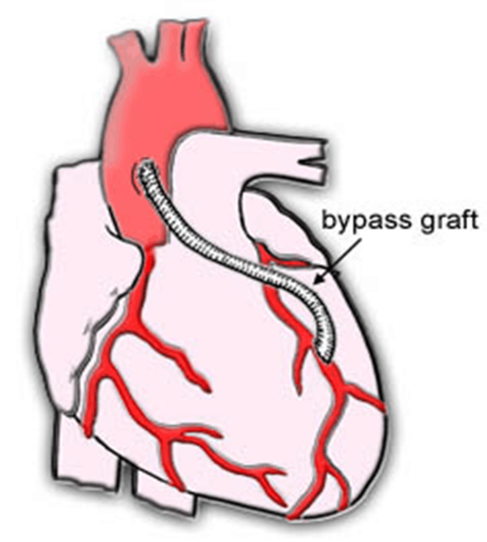 Image of Bypass Grafting
