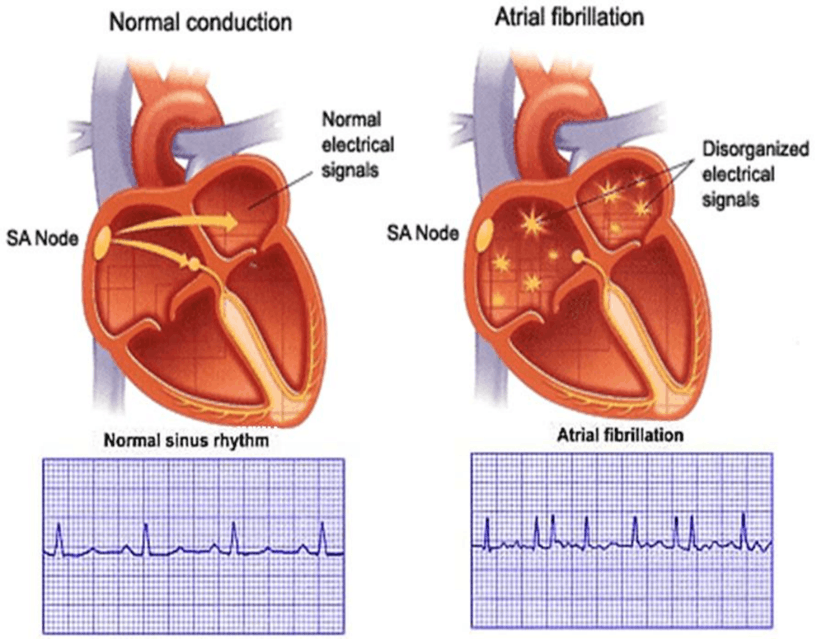 Image of Normal Sinus Rhythm And Atrial Fibrillation