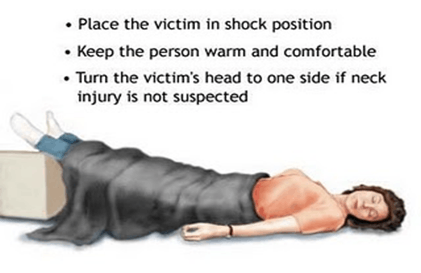 Image of Place The Victim In Shock Position