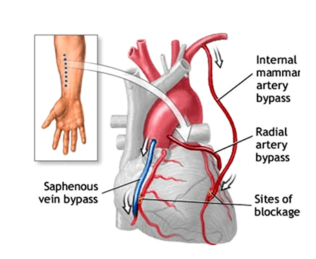 Images of Saphenous Vein Bypass