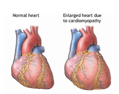 Image of Normal Heart And Enlarged Heart Due To Cardiomyopat …
