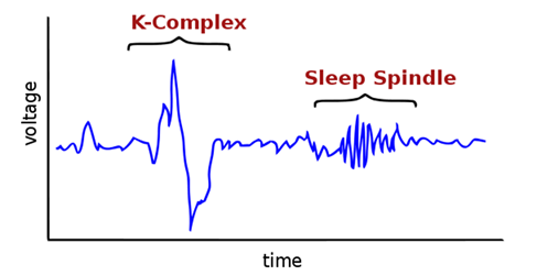 Image of Sleep Spindles And K Complexes