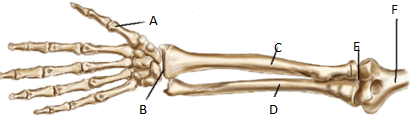 Image shows bone of arm
