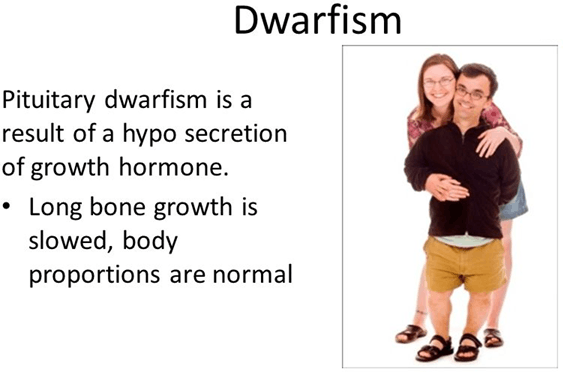 Image Figure shown the dwarfism