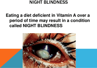 Image of Night blindness
