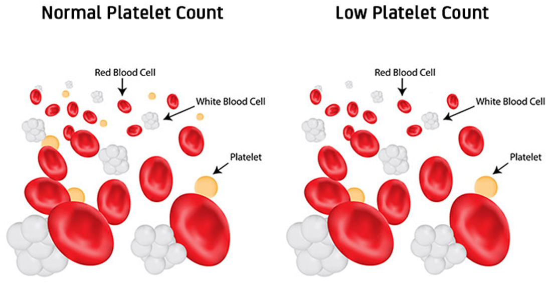 Image shows Normal and Low Platelet Count